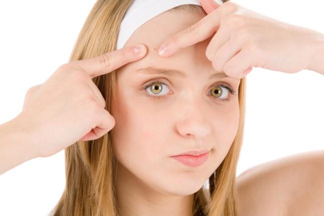 Tránh nặn mụn gây thâm sẹo