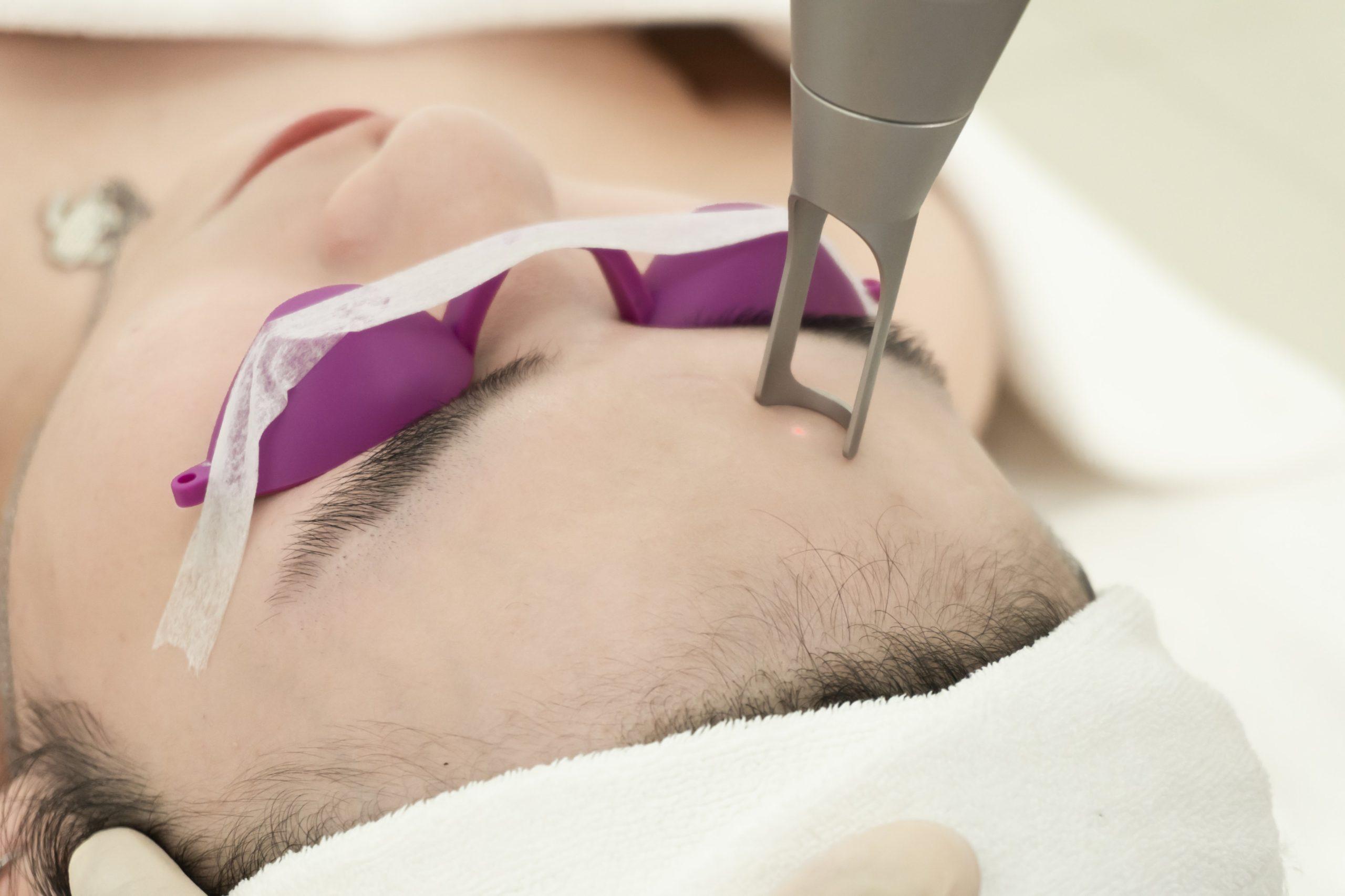 Công nghệ LaserNano chuyên trị nám, tàn nhang chống lão hóa